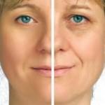 contrastare l'invecchiamento